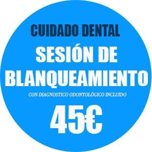 oferta blanqueamiento dental getafe