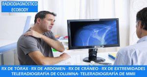 radiografía en Madrid
